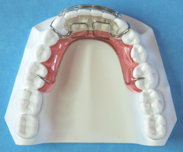 Modified Mandibular Spring Aligner